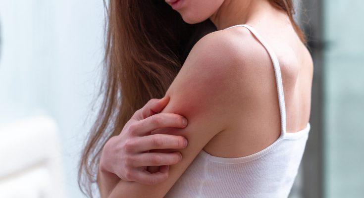 Stop alergii od dziś