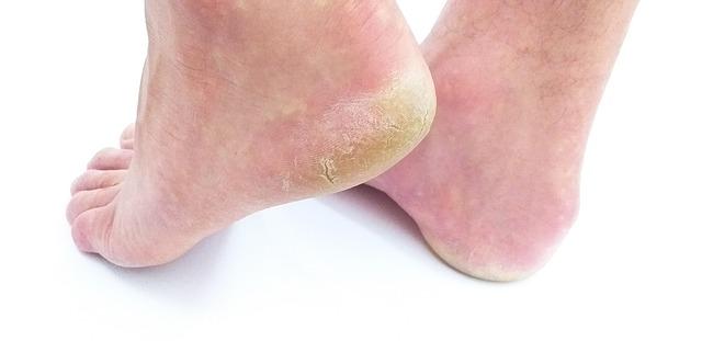 Problem ze złuszczającą się skórą na piętach – co robić